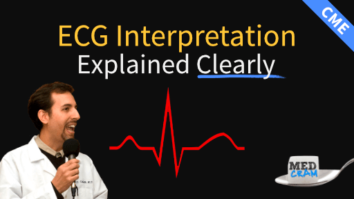 ecg interpretation explained clearly
