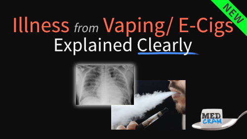 vaping associated lung injury explained clearly